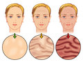Skin aging medical illustration of the effects of Royalty Free Stock Photos