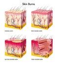 Skin burns Royalty Free Stock Photo