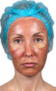 Skin condition after chemical peeling TCA. face Royalty Free Stock Photo