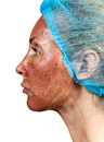 Skin condition after chemical peeling TCA.profil Royalty Free Stock Photo