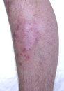 Skin Disease Stock Photo