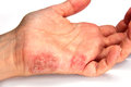 Skin disease tinea manuum close up Royalty Free Stock Photos