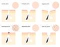 Skin pores Royalty Free Stock Photo