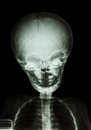 Skull and body of child film x ray Stock Photo