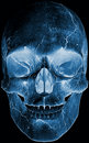 Skull head x ray Royalty Free Stock Photos