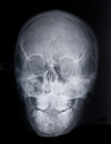 Skull x ray of a deformed Stock Images