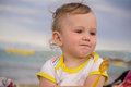Small child with redness on the skin Royalty Free Stock Photo