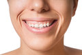 Small teeth isolated horizontal photo of a smiling young girl with problem large gingiva or gum her smile reveals her tooth and Royalty Free Stock Photos