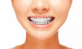 Smile teeth with braces female dental care concept front view Stock Photo