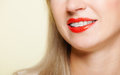 Smiling girl with braces face part teeth straighten, tooth hygiene Royalty Free Stock Image