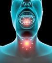 Sore throat inflammation, redness, pain burning