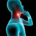 Sore throat inflammation redness pain that spreads around the neck Stock Photography