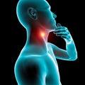Sore throat inflammation, redness, pain,