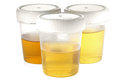 Specimen cups for urinalysis Royalty Free Stock Photo
