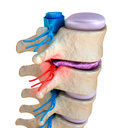 Spinal cord under pressure of bulging disc Royalty Free Stock Photo