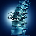 Spinal Fracture Royalty Free Stock Photo