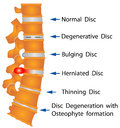 Spine conditions degenerative disc bulging disc herniated disc thinning disc disc degeneration with osteophyte formation Royalty Free Stock Image