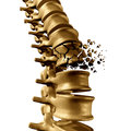 Spine Fracture Royalty Free Stock Photo