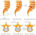 Spine fracture spondylolysis spondylolisthesis is a defect in the bony ring comprising the spinal column displacement of a lumbar Royalty Free Stock Images