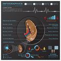 Spleen Anatomy System Medical Infographic Infochart