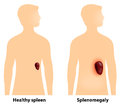 Splenomegaly or enlarged spleen is an enlargement of the Royalty Free Stock Photos