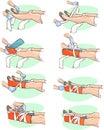 Splinting a Broken leg