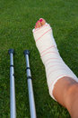 Sprain Royalty Free Stock Photo