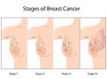Stages of Breast Cancer Royalty Free Stock Photography