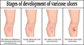 Stages of development of varicose ulcers