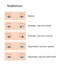Strabismus Royalty Free Stock Photos