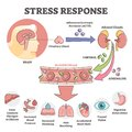 Stress response anatomical scheme with body inner reaction outline concept Royalty Free Stock Photo