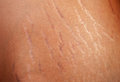 Stretch marks on the body of a pregnant woman Stock Photo