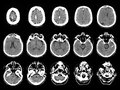 Stroke on ct scans computed tomography images of the brain post Stock Photography