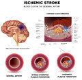 Stroke ischemic in the cerebral artery stable and unstable plaque formation and thrombus Stock Images