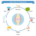 Strong bones foods infographics Royalty Free Stock Photo