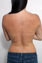 Sunburned, Peeling Female (1) Stock Photography