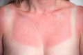 Sunburned young woman who forgot the sun tan lotion Royalty Free Stock Images