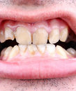 Tartar and tooth decay diseased teeth of the patient Royalty Free Stock Image