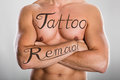 Tattoo Removal Text On Man`s Chest And On His Arm Royalty Free Stock Photo
