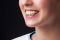 Teen denture girl closeup wearing studio shot Stock Image