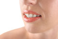 Teeth alignment braces beautiful woman smiling white background Royalty Free Stock Images