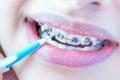 Teeth with braces.