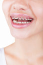 Teeth with braces close up of young girl smiling isolated on white background Stock Image