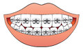 Teeth with braces mouthful of brand new Royalty Free Stock Photo