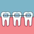 Teeth with dental braces - arrange