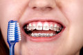Teeth with orthodontic brackets. Royalty Free Stock Photo
