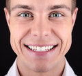 Teeth smile open of a young white male Royalty Free Stock Images