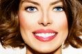 Teeth Whitening Royalty Free Stock Photo