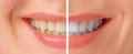 Teeth before and after whitening close up image of female Royalty Free Stock Photo