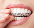 Teeth with whitening tray Stock Image